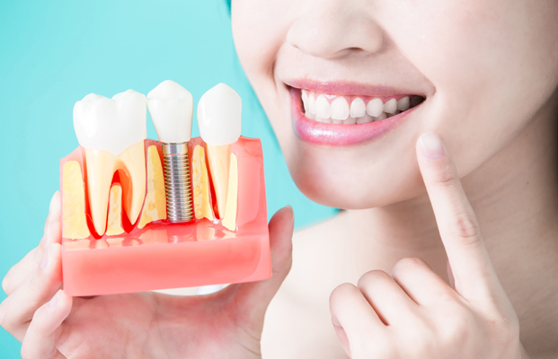 Information On Dental Implants