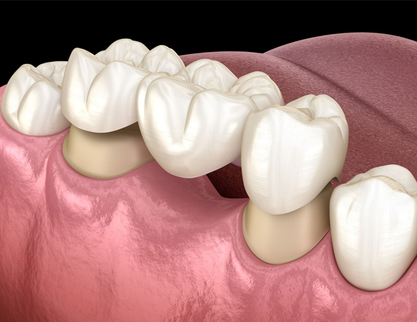 What Is A Fixed Dental Bridge