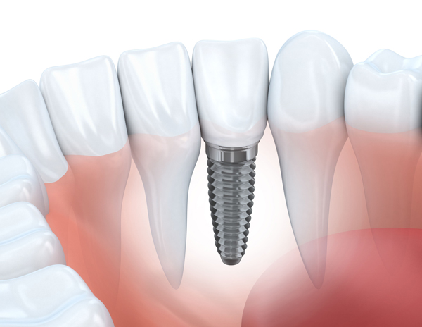 Why Are All On 4 Dental Implants Needed