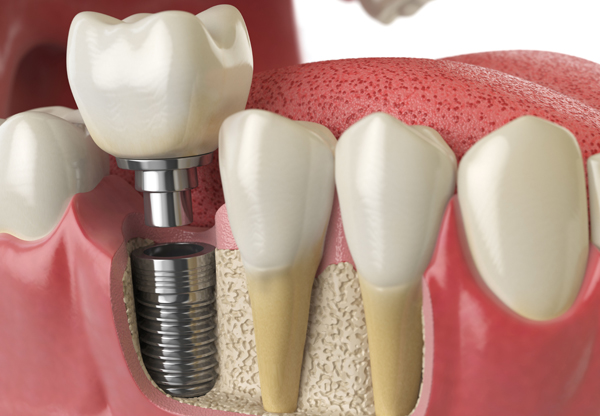 Why Would A Dental Implant Be Needed