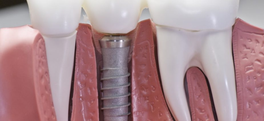 What Should You Consider When You Search For A Good Dental Implant Specialist?